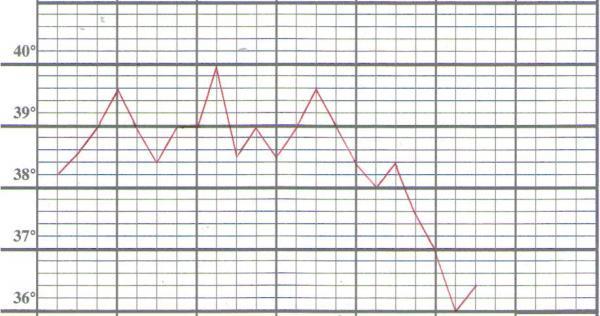 Andamento della temperatura durante una delle crisi febbrili